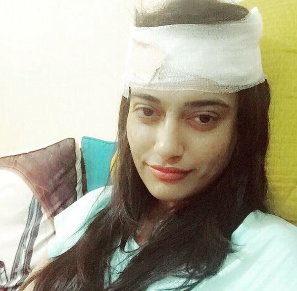 Qubool Hai's Surbhi Jyoti badly injured!