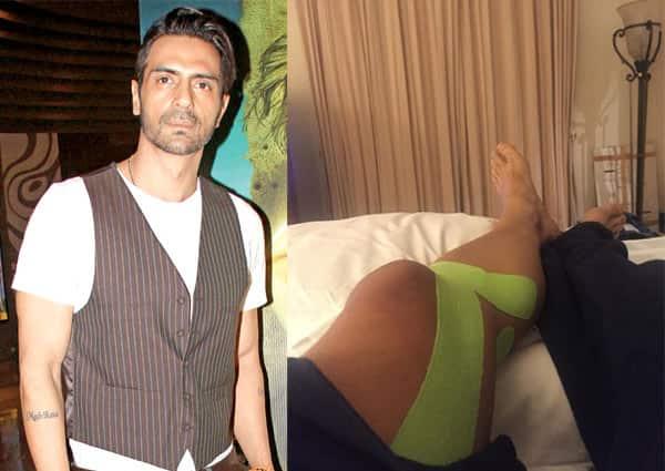 Arjun Rampal gets injured on the sets of Kahaani 2!
