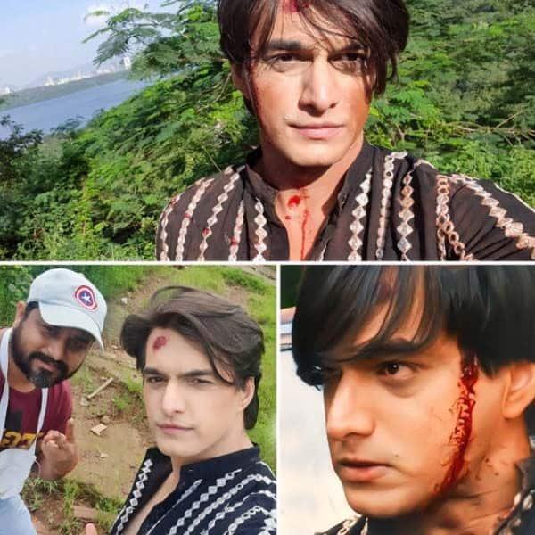 'ये रिश्ता क्या कहलाता है' के सेट पर खून से सने दिखें मोहसिन खान
