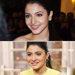 When Anushka Sharma accepted getting a lip job done and shut down trolls like a boss