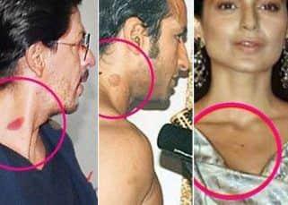 Shah Rukh Khan, Kangana Ranaut, Saif Ali Khan and more Bollywood celebs who flaunted their love bites with pride – view pics