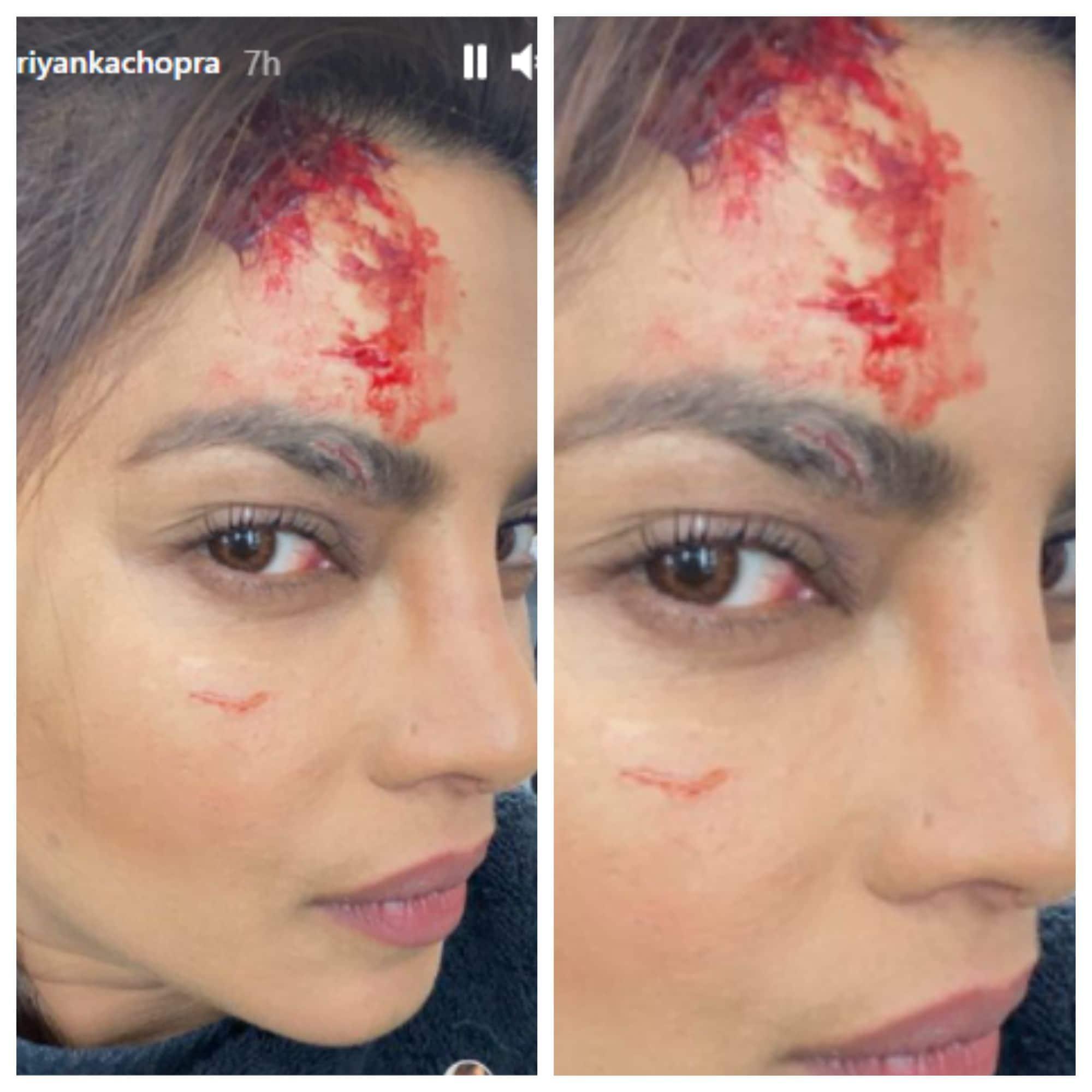 शूटिंग के दौरान लगी प्रियंका को चोट