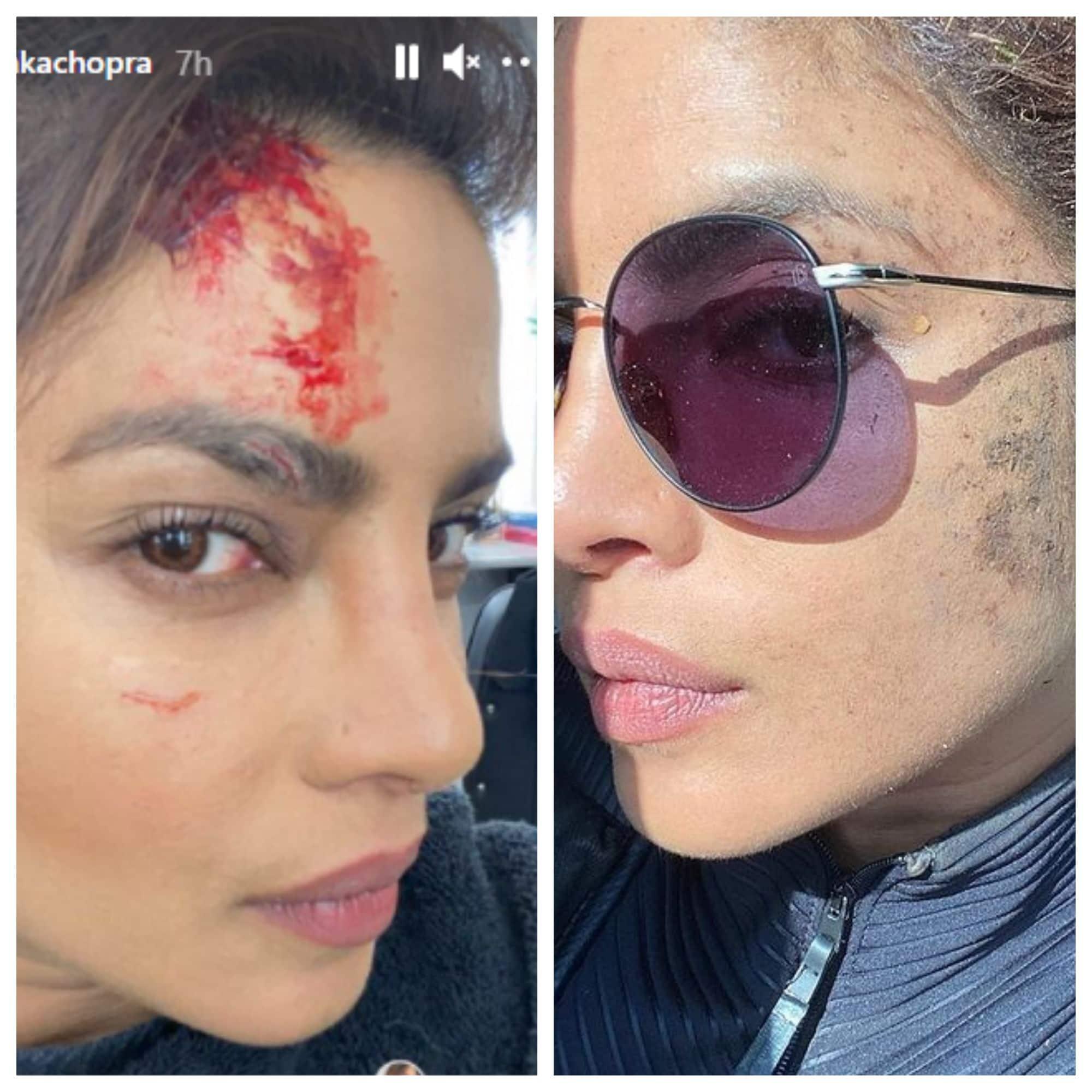 शूटिंग के दौरान फूटा Priyanka Chopra का सिर