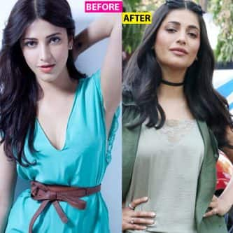 Shruti Haasan looks a tad different in her latest photos, has she gone under a lip job?